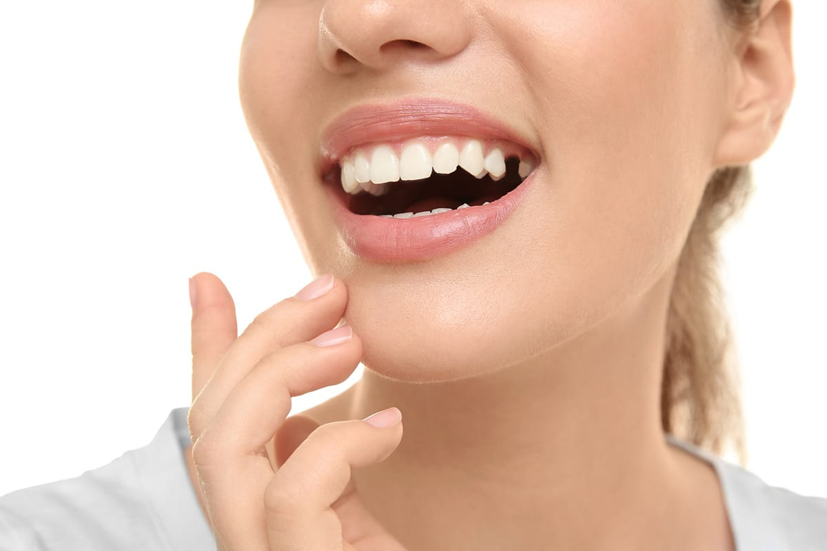 Choice-dental-missing-tooth