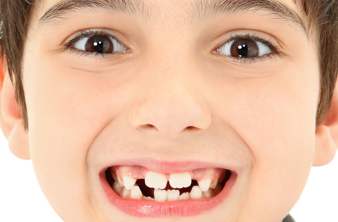 Ensuring your child develops healthy teeth for life